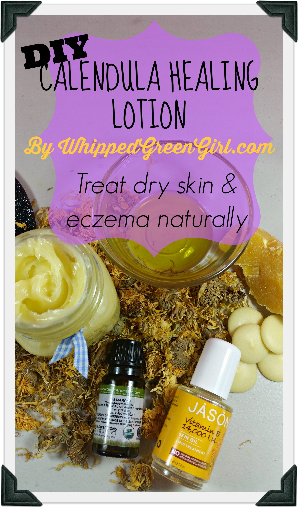 #DIY #Calendula Healing Lotion #recipe by WhippedGreenGirl.com (great for dry skin, eczema)